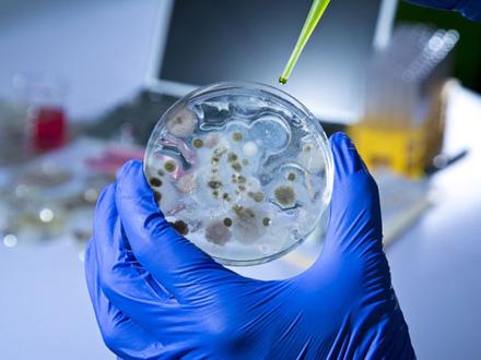 Mogući uzrok novi tip korona virusa FOTO: Shutterstock
