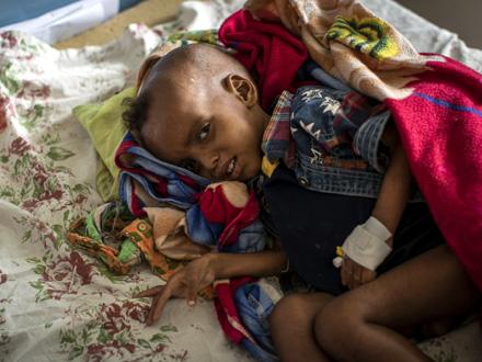 Na istoku Etiopije vlada glad FOTO: AP