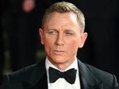 Agent 007 se povredio, mora na operaciju